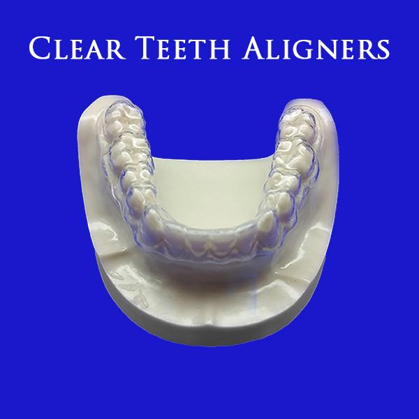 partial-dentures-1